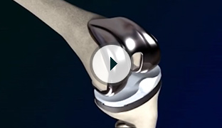 Advantages of Robotic Assisted Hip surgery